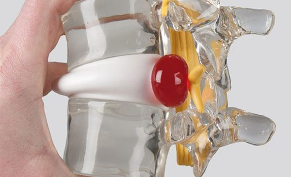 Ozonoterapia în tratarea herniei de disc