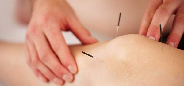 acupunctura în tratamentul artrozei articulare