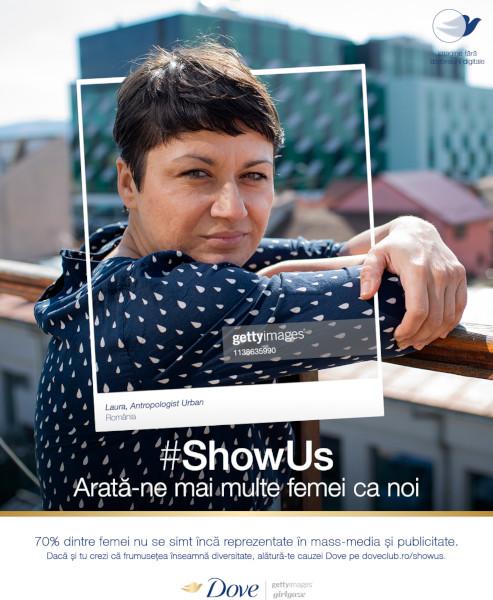 Dove lanseaza initiativa #ShowUs