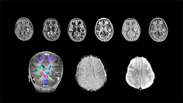 Anevrismele cerebrale vor fi diagnosticate și monitorizate folosind inteligența artificială