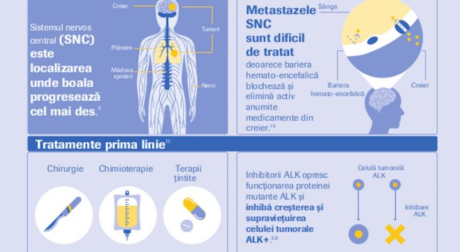 O nouă terapie țintită disponibilă pentru pacienții cu o forma rară de cancer pulmonar