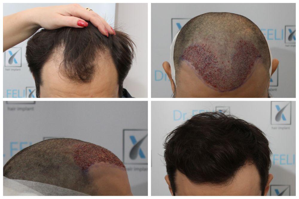 implant par dr felix